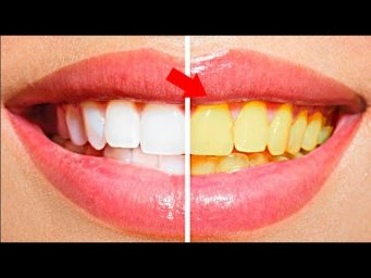 In just Two Minutes, White Teeth Whiten And Shiny Like Pearls, This Recipe!